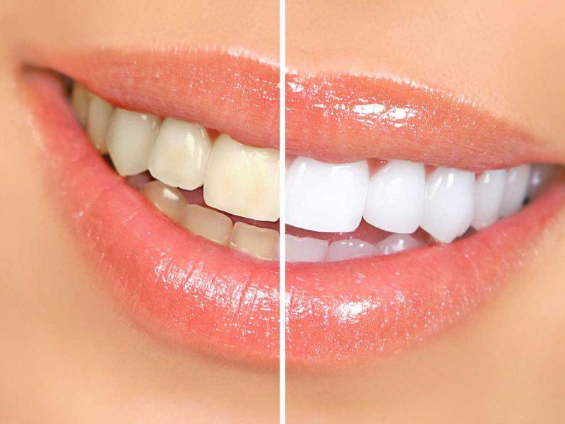 Eryaman Diş Ağız Ve Diş Sağlığı