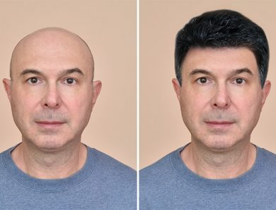 Erkek Protez Saç Uygulamaları Oscar Hair Protez Saç Merkezinde